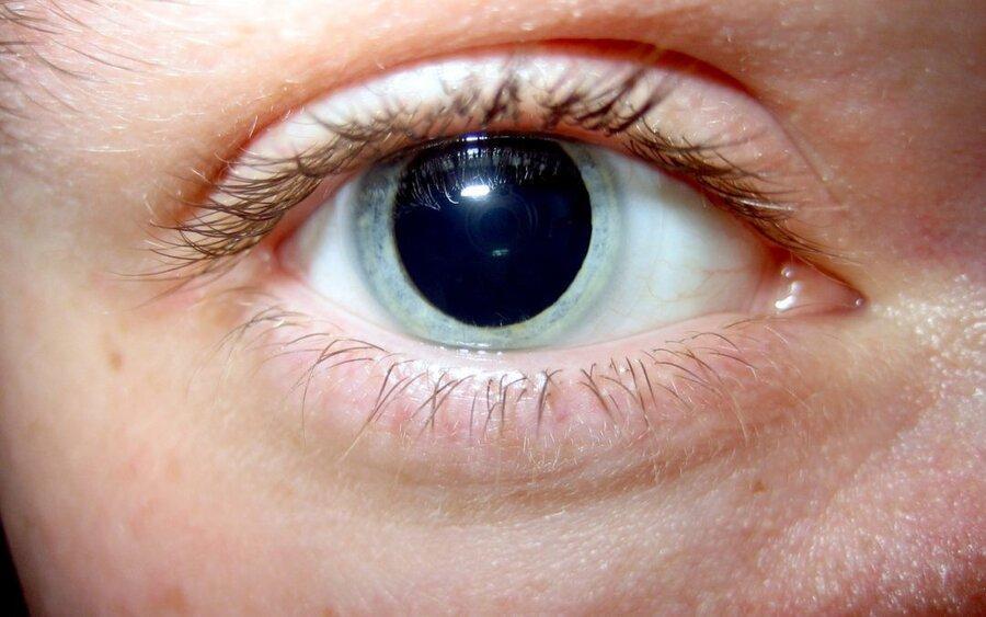 نکته بهداشتی: گشاد کردن مردمک در معاینه چشم پزشکی